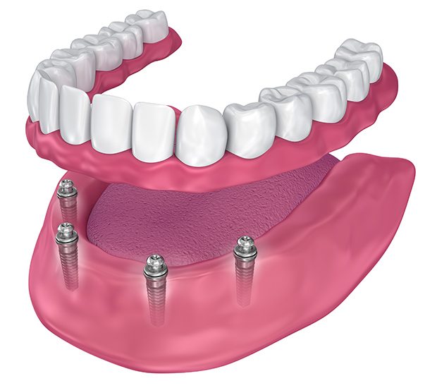 Upland All-on-4 Implants
