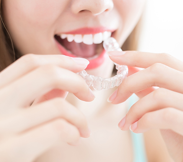 Upland Alternative to Braces for Teens