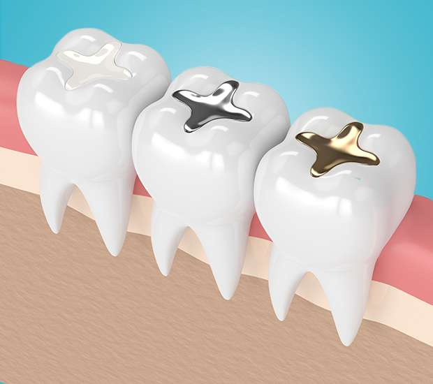 Upland Composite Fillings