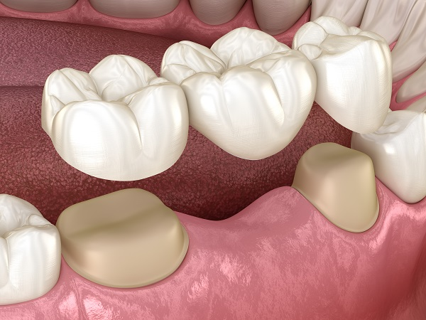 Are There Different Types Of Dental Bridge?