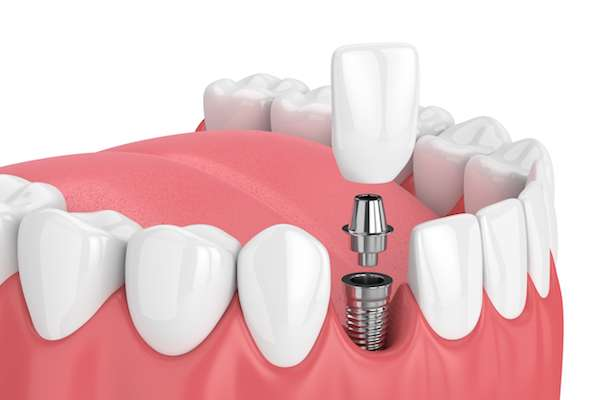 How Painful is Dental Implant Surgery from Smile Studio in Upland, CA
