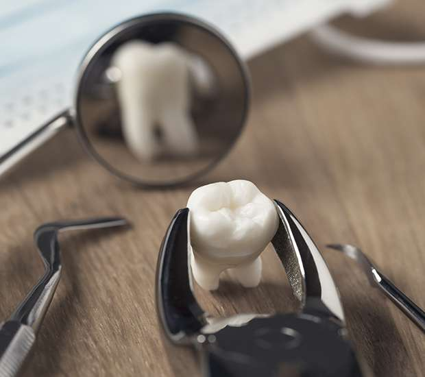 Upland When Is a Tooth Extraction Necessary